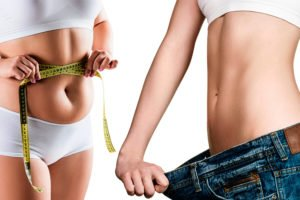 Weight Loss Options